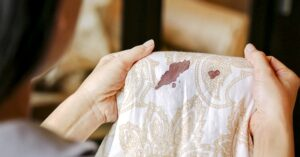 Treat the stains as soon as possible - How To Remove Blood Stains